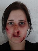 Assault Victim/Boxing Injuries - makeup done by me on myself