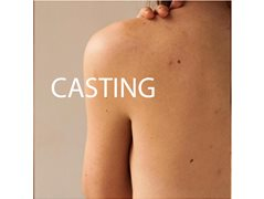 Skin Casting Models with C-Sections and Freckled Backs