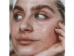Creator/Vlogger Wanted for Product Demonstration of Beauty Pimple Product