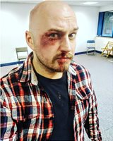 Self applied fight make-up.